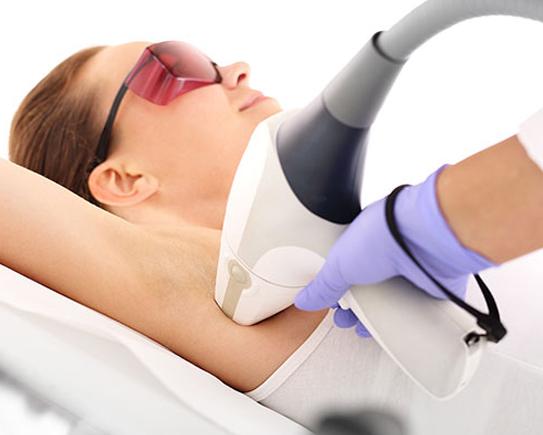 Epilazione laser corpo