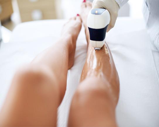 epilazione laser gambe
