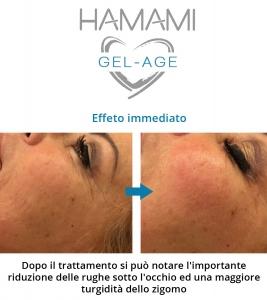prima_dopo_hamami gel age